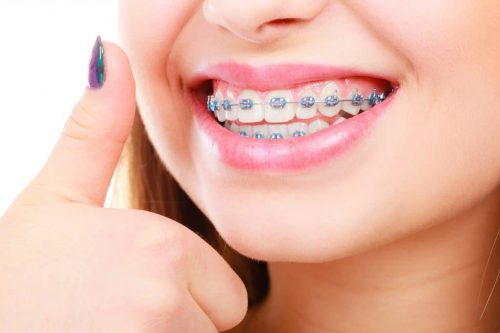 Orthodontics Glen Ellyn