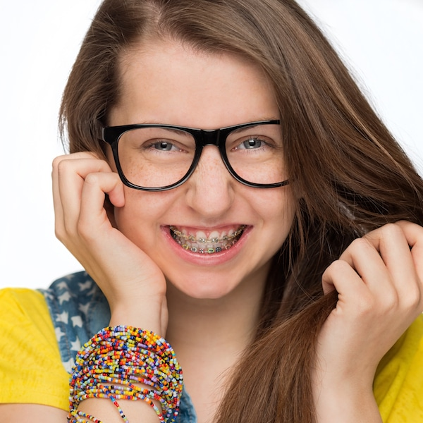 orthodontics freckle face fun girl 600